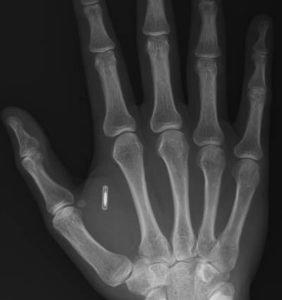 rfid-chip-implante